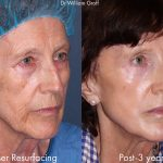 before and adfter of a laser resurfacing treatment with 3 years in between at cosmetic laser dermatology in san diego, ca