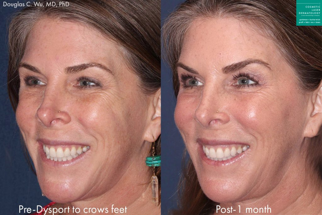 Actual unretouched patient before and after Dysport injections to treat crow's feet by Dr. Wu. Disclaimer: Results may vary from patient to patient. Results are not guaranteed.