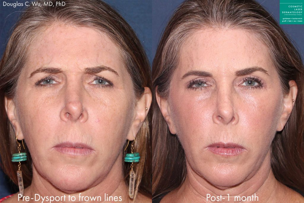Actual unretouched patient before and after Dysport injections to treat glabellar lines by Dr. Wu. Disclaimer: Results may vary from patient to patient. Results are not guaranteed.