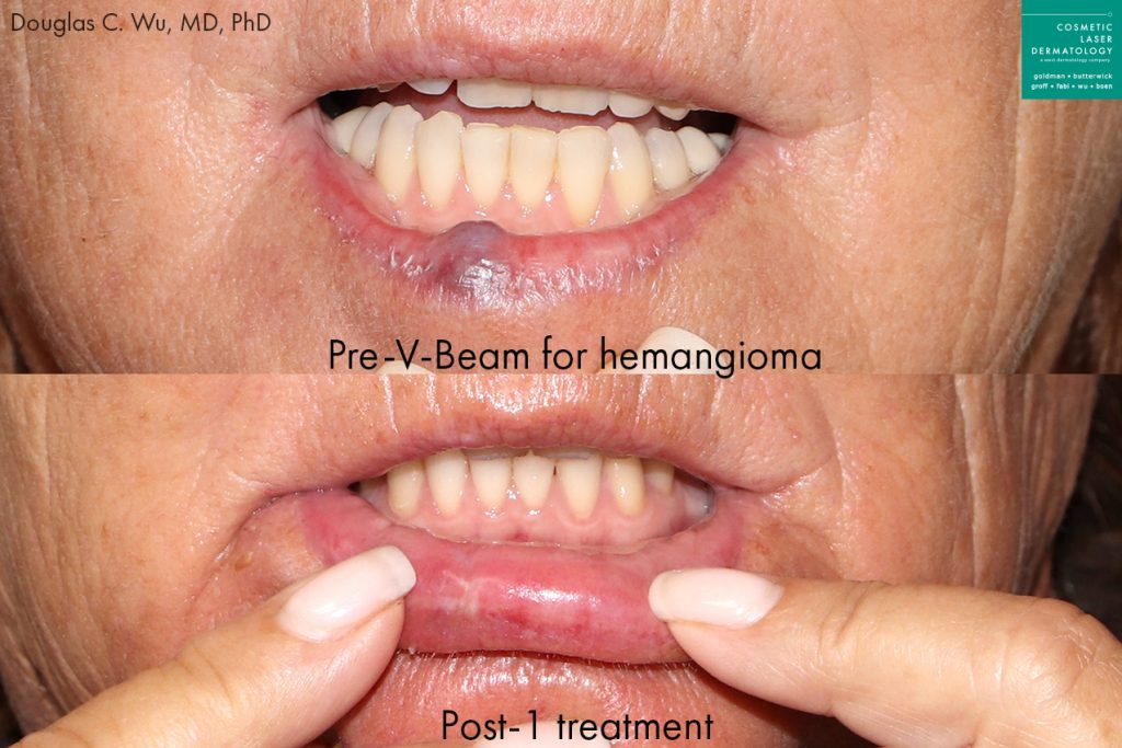 Actual unretouched patient before and after V-Beam to remove a hemangioma by Dr. Wu. Disclaimer: Results may vary from patient to patient. Results are not guaranteed.