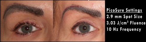 before and after of an eyebrow that under went picosure laser procedure