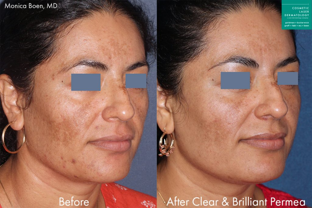 Actual unretouched patient before and after Clear + Brilliant to treat pigmentation and sun damage by Dr. Boen. Disclaimer: Results may vary from patient to patient. Results are not guaranteed.