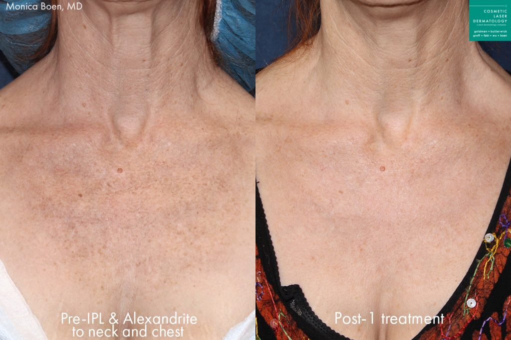 Actual unretouched patient before and after IPL photofacial and Alexandrite laser to rejuvenate the chest by Dr. Boen. Disclaimer: Results may vary from patient to patient. Results are not guaranteed.