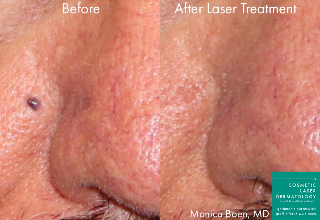 Actual unretouched patient before and after Vbeam to remove vascular lesion by Dr. Boen. Disclaimer: Results may vary from patient to patient. Results are not guaranteed.