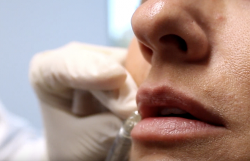 Injecting botox and dermal fillers into lips in san diego, ca