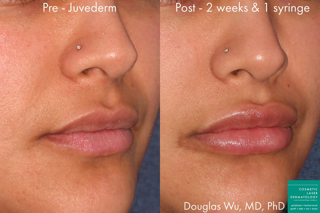 Actual unretouched patient before and after Juvederm injections to augment the lips by Dr. Wu. Disclaimer: Results may vary from patient to patient. Results are not guaranteed.