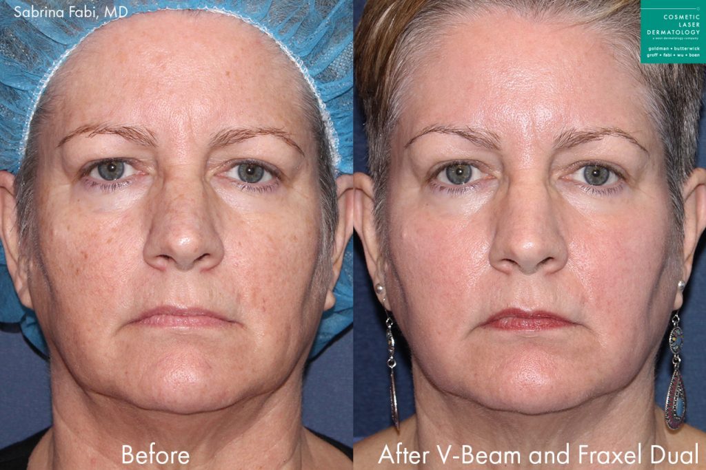 Actual unretouched patient before and after Fraxel Dual and Vbeam to treat sun damage and rejuvenate the skin by Dr. Fabi. Disclaimer: Results may vary from patient to patient. Results are not guaranteed.