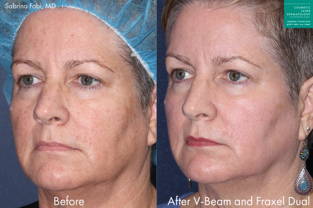 Actual unretouched patient before and after Vbeam and Fraxel Dual to treat sun damage and rejuvenate the skin by Dr. Fabi. Disclaimer: Results may vary from patient to patient. Results are not guaranteed.