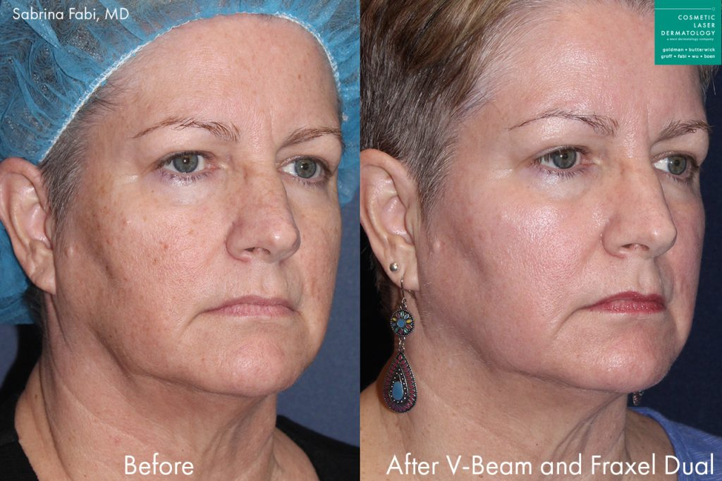 Actual unretouched patient before and after Vbeam and Fraxel Dual to rejuvenate the skin by Dr. Fabi. Disclaimer: Results may vary from patient to patient. Results are not guaranteed.