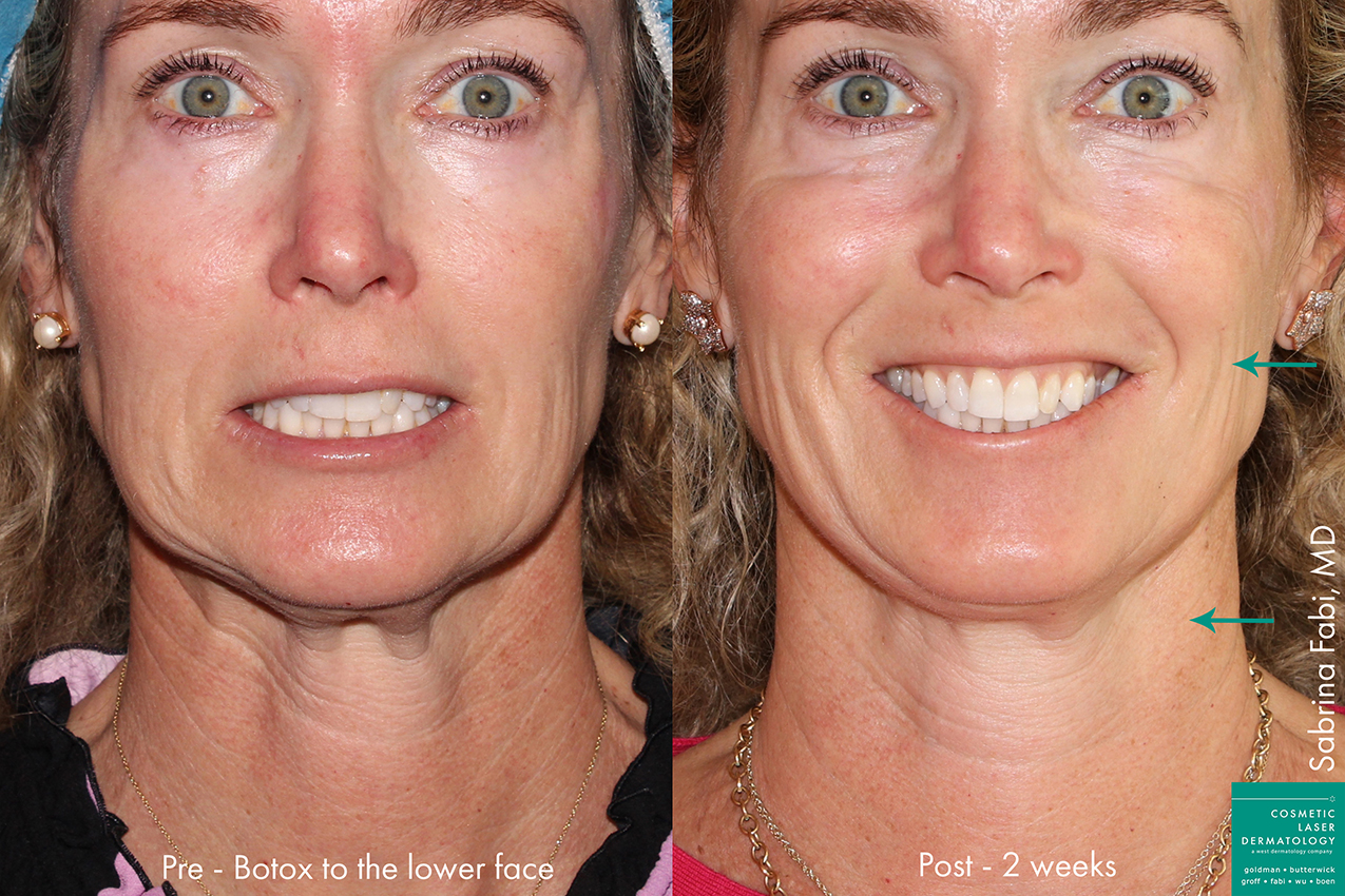 Actual unretouched patient before and after Botox injections to the lower face and neck by Dr. Fabi. Disclaimer: Results may vary from patient to patient. Results are not guaranteed.
