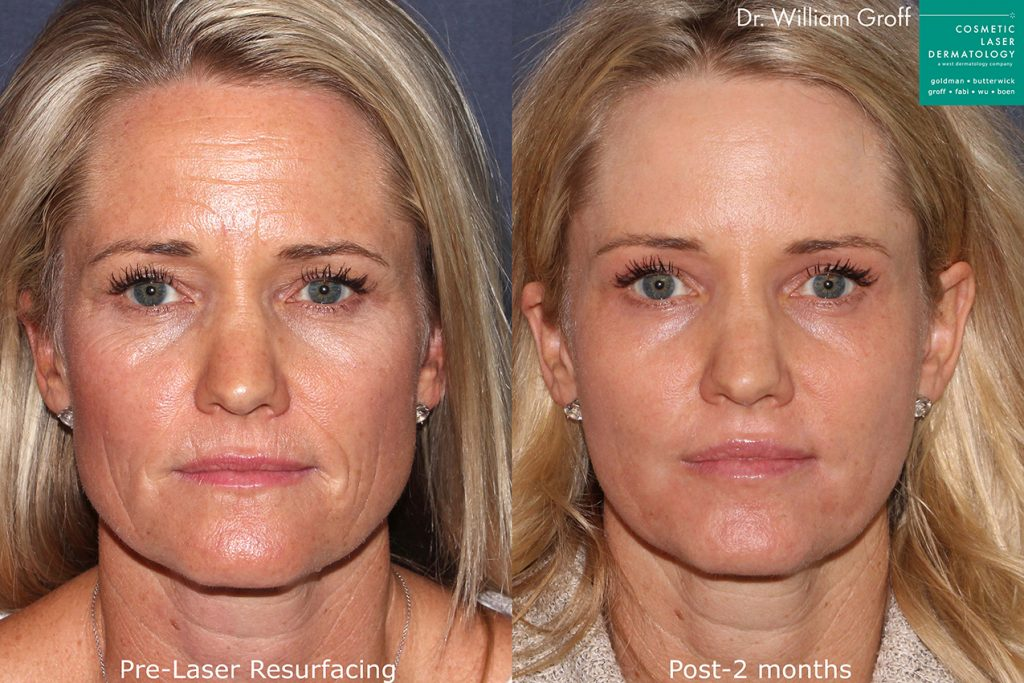 Actual unretouched patient before and after laser resurfacing to rejuvenate the skin by Dr. Groff. Disclaimer: Results may vary from patient to patient. Results are not guaranteed.