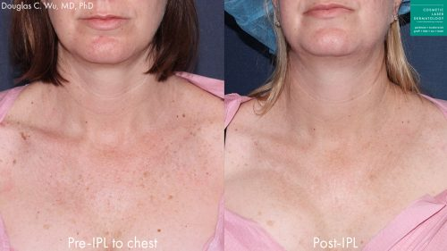 Before and after front image of IPL treatment on a female's chest performed by Dr. Wu at our San Diego medi spa