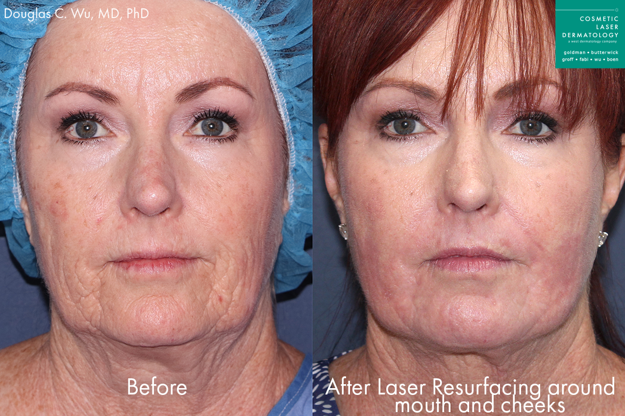 Actual unretouched patient before and after laser resurfacing to rejuvenate the skin by Dr. Wu. Disclaimer: Results may vary from patient to patient. Results are not guaranteed.
