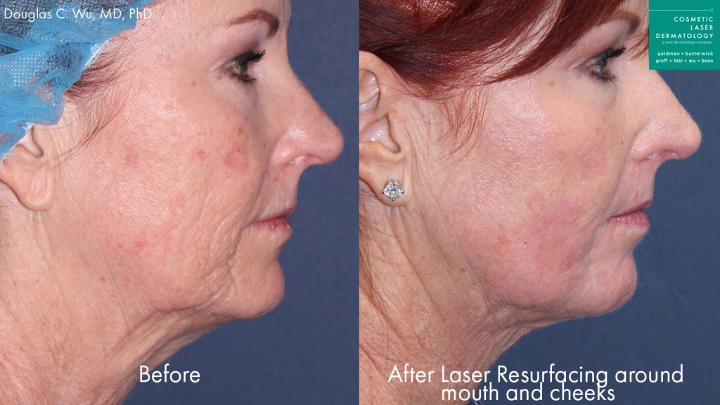 Actual unretouched patient before and after laser resurfacing to rejuvenate the mouth and lower face by Dr. Wu. Disclaimer: Results may vary from patient to patient. Results are not guaranteed.