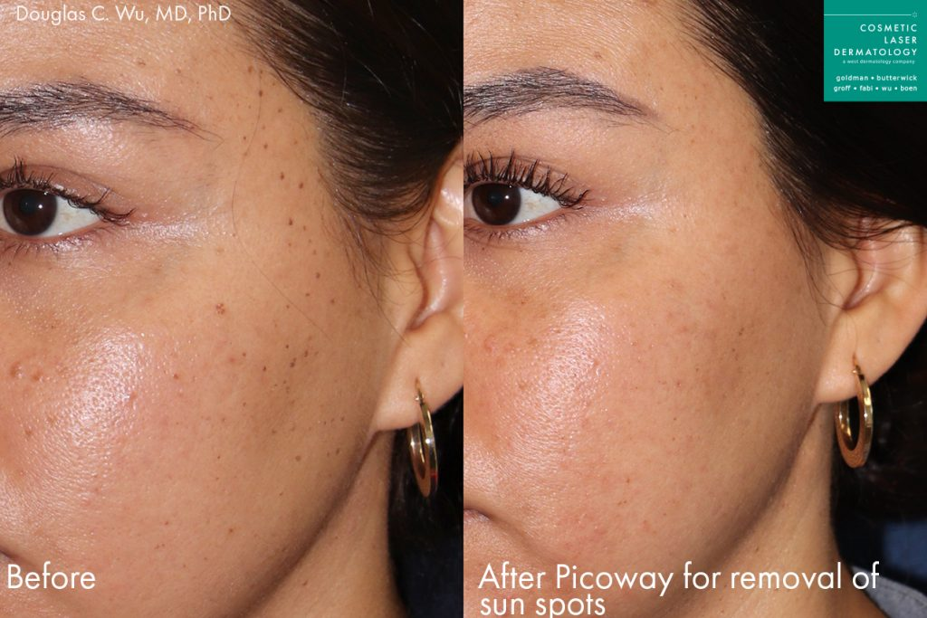 Actual unretouched patient before and after PicoWay laser to treat sun spots by Dr. Wu. Disclaimer: Results may vary from patient to patient. Results are not guaranteed.