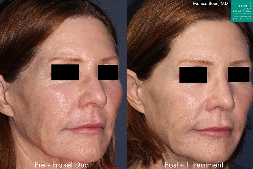 Actual un-retouched patient before and after Fraxel Dual to treat sun damage and rejuvenate the skin by Dr. Boen. Disclaimer: Results may vary from patient to patient. Results are not guaranteed.