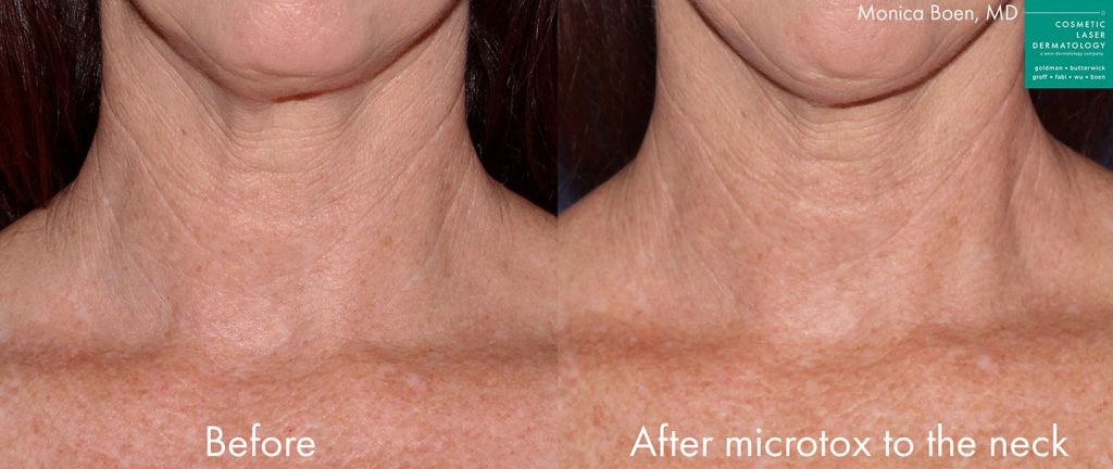 Actual un-retouched patient before and after microtox injections to reduce lines and rejuvenate the neck by Dr. Boen. Disclaimer: Results may vary from patient to patient. Results are not guaranteed.