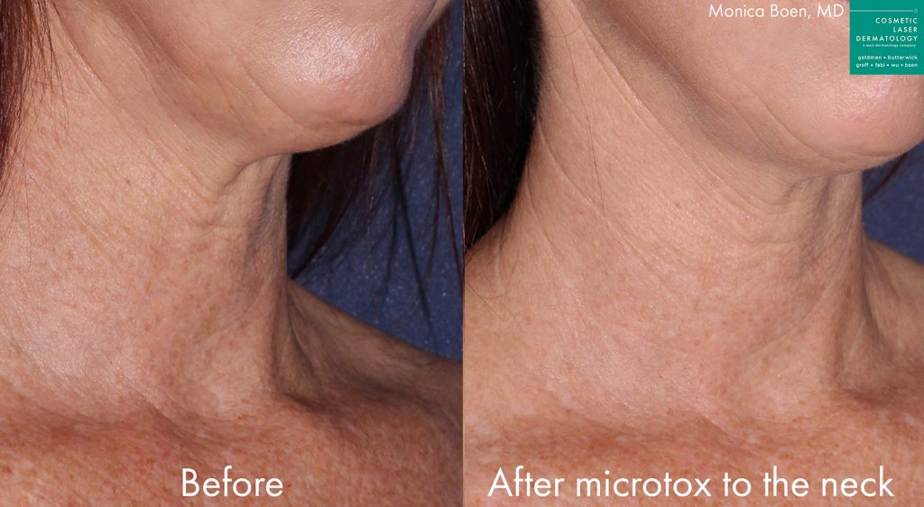 Actual un-retouched patient before and after microtox to reduce lines and rejuvenate the neck by Dr. Boen. Disclaimer: Results may vary from patient to patient. Results are not guaranteed.