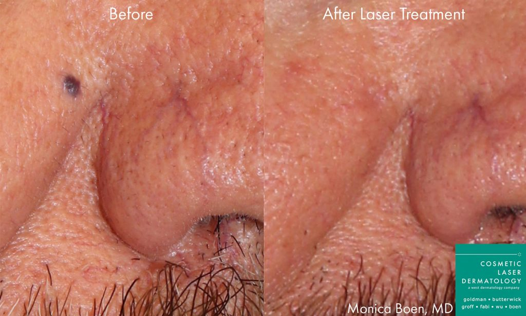 Actual un-retouched patient before and after Vbeam treatment to remove vascular lesion by Dr. Boen. Disclaimer: Results may vary from patient to patient. Results are not guaranteed.
