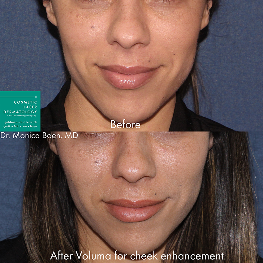 Actual un-retouched patient before and after Voluma injections to add fullness to the cheeks by Dr. Boen. Disclaimer: Results may vary from patient to patient. Results are not guaranteed.