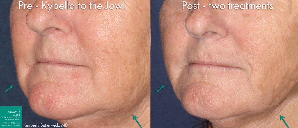 Actual un-retouched patient before and after 2 sessions of Kybella injections to reduce submental fat under the chin by Dr. Butterwick. Disclaimer: Results may vary from patient to patient. Results are not guaranteed.