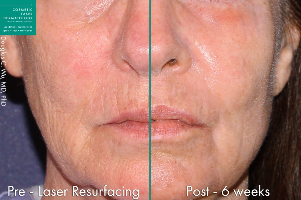 Actual un-retouched patient before and after laser resurfacing to rejuvenate the skin and minimize facial lines by Dr. Wu. Disclaimer: Results may vary from patient to patient. Results are not guaranteed.