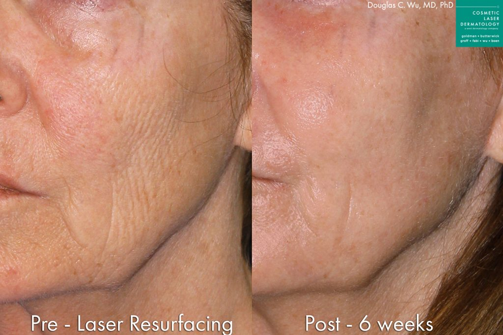 Actual un-retouched patient before and after laser resurfacing for skin rejuvenation by Dr. Wu. Disclaimer: Results may vary from patient to patient. Results are not guaranteed.
