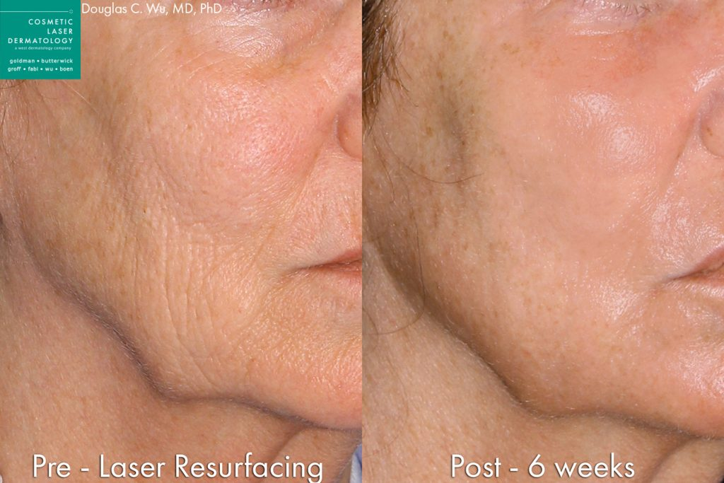 Actual un-retouched patient before and after laser resurfacing to rejuvenate the skin by Dr. Wu. Disclaimer: Results may vary from patient to patient. Results are not guaranteed.