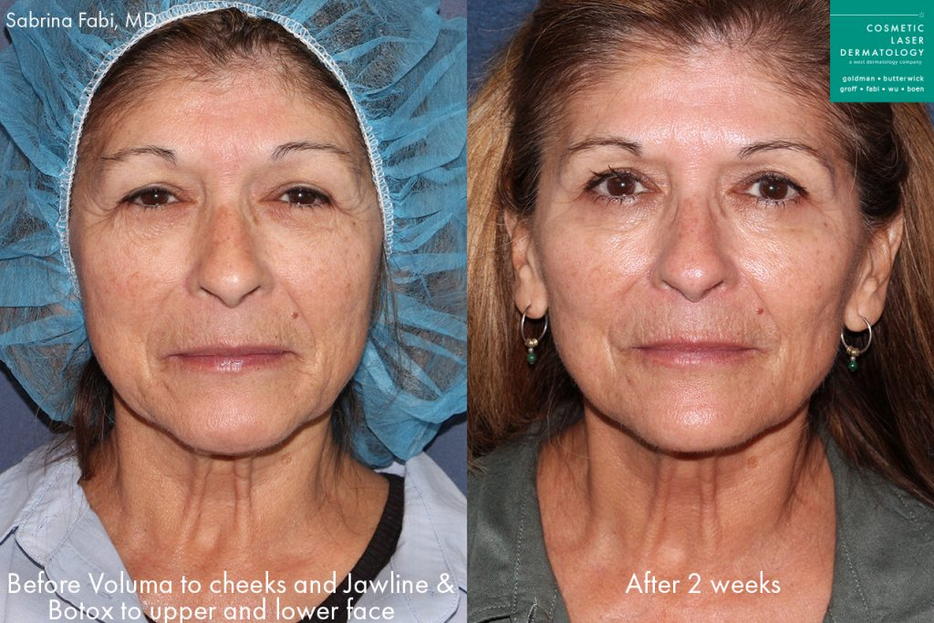 Actual un-retouched patient before and after Voluma injections to the midface and jawline and Botox for wrinkle reduction by Dr. Fabi. Disclaimer: Results may vary from patient to patient. Results are not guaranteed.