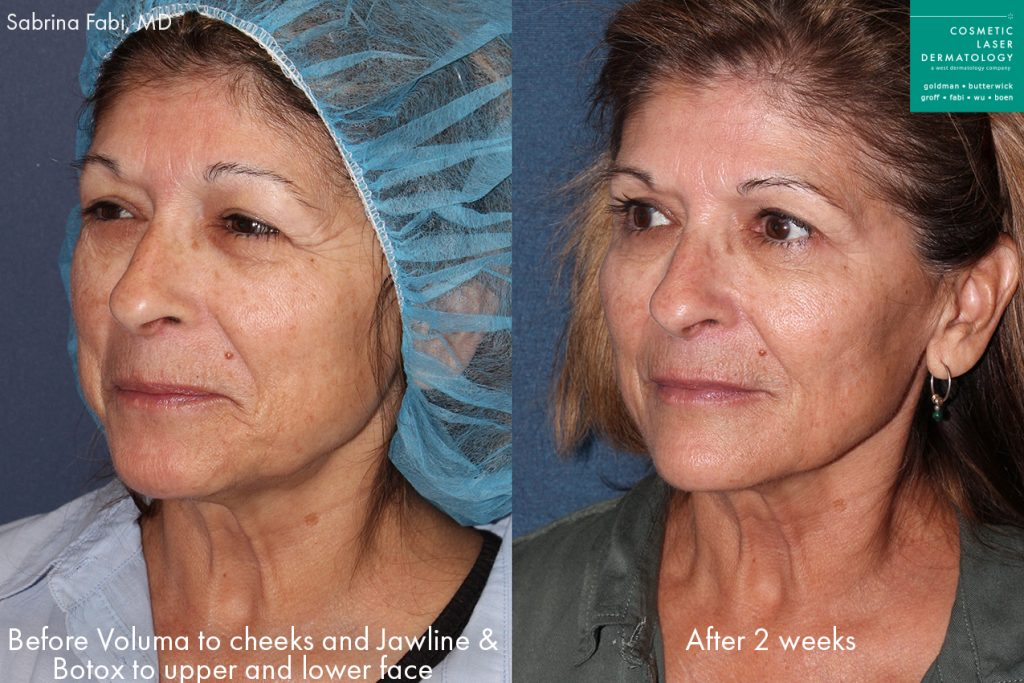 Actual un-retouched patient before and after Botox for wrinkle reduction and Voluma to add volume to the midface and jawline by Dr. Fabi. Disclaimer: Results may vary from patient to patient. Results are not guaranteed.