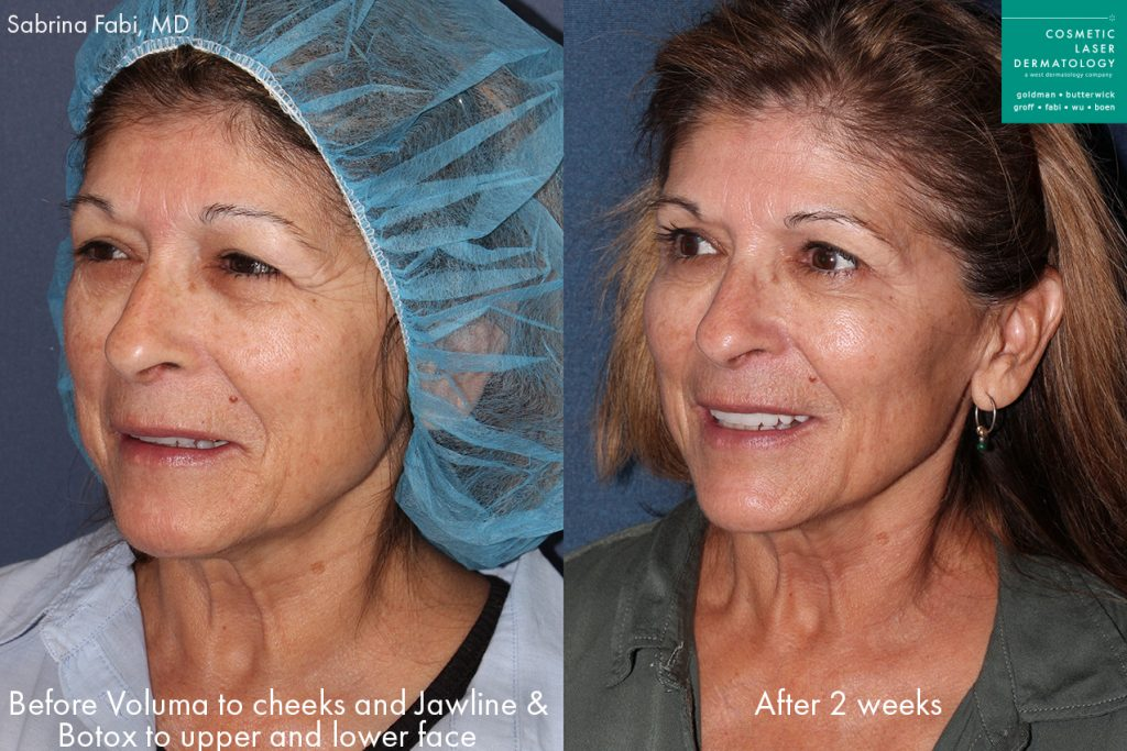 Actual un-retouched patient before and after Voluma to add Volume to the midface and Botox to reduce wrinkles by Dr. Fabi. Disclaimer: Results may vary from patient to patient. Results are not guaranteed.