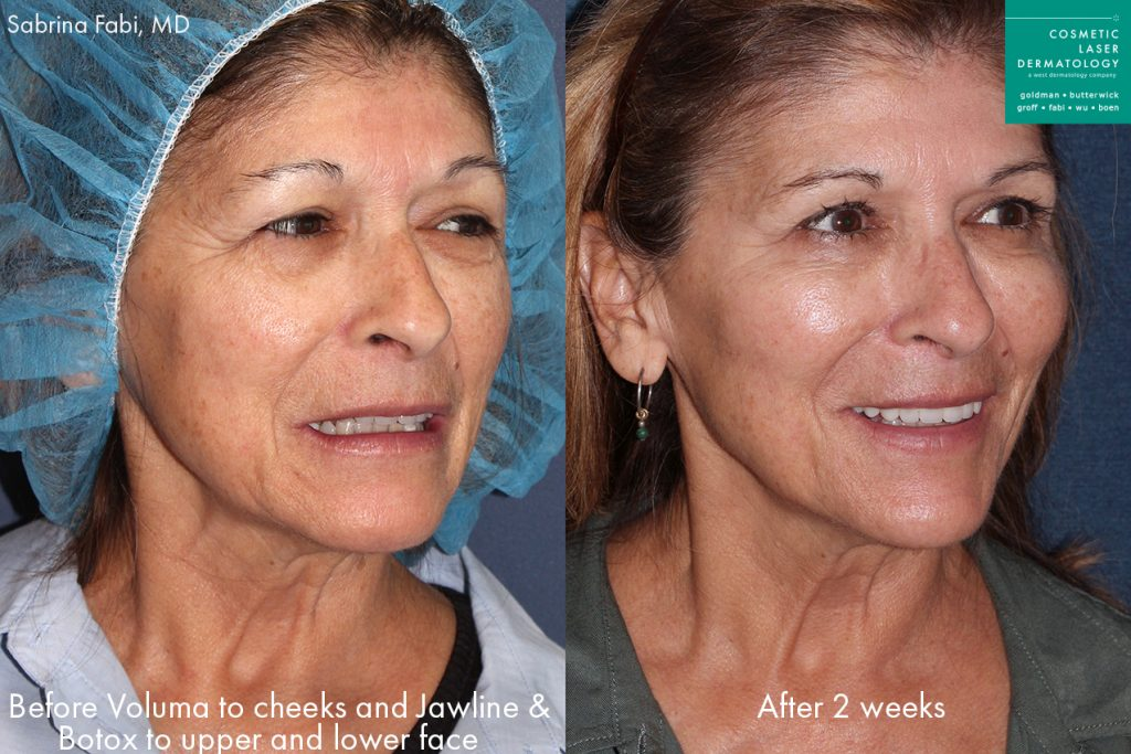 Actual un-retouched patient before and after Voluma for facial contouring and Botox for wrinkle reduction by Dr. Fabi. Disclaimer: Results may vary from patient to patient. Results are not guaranteed.