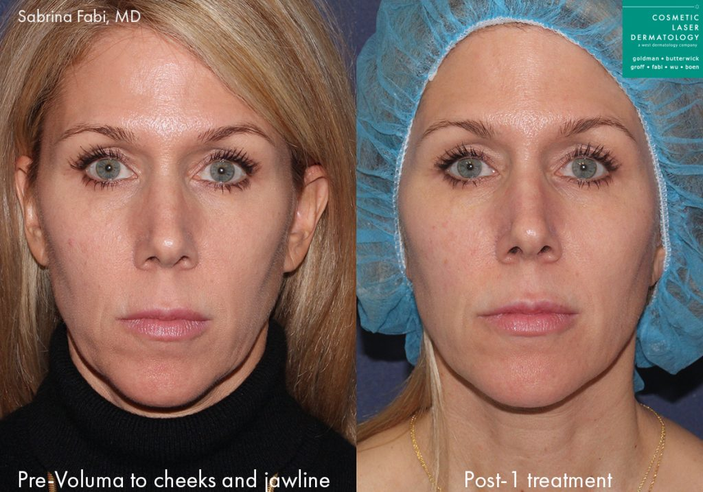 Actual un-retouched patient before and after Voluma injections to augment the cheeks and jawline by Dr. Fabi. Disclaimer: Results may vary from patient to patient. Results are not guaranteed.