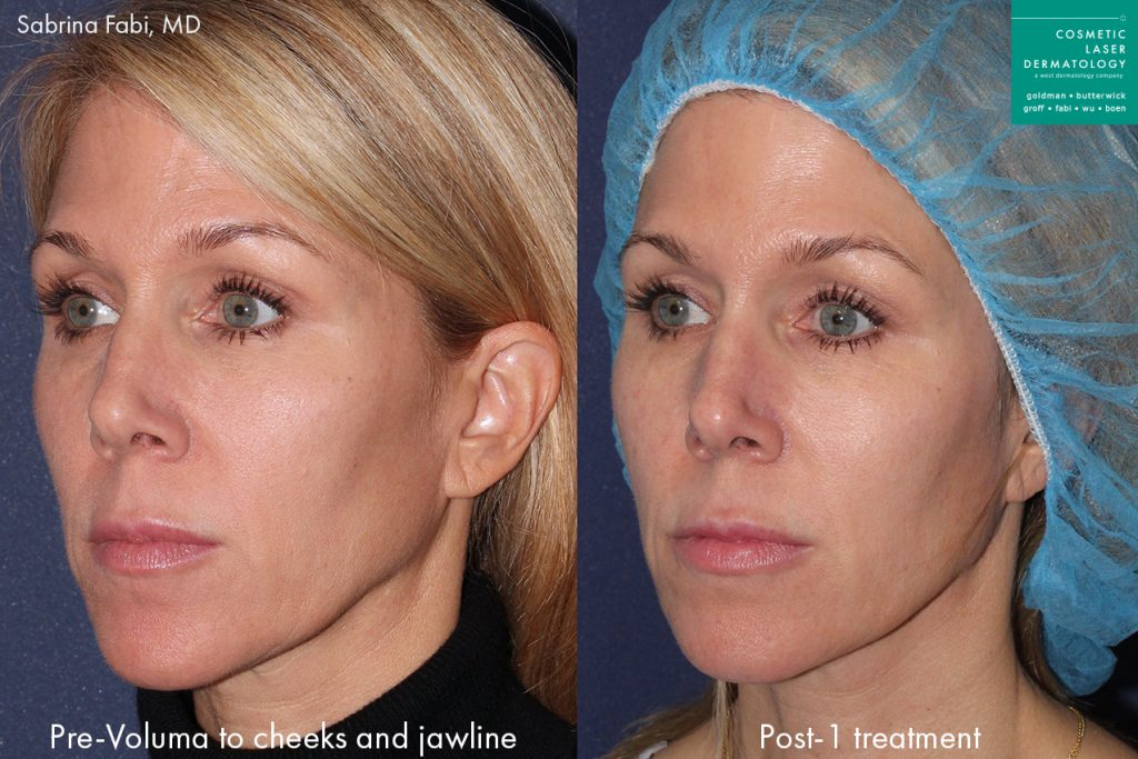 Actual un-retouched patient before and after Voluma injections to enhance the cheeks and jawline by Dr. Fabi. Disclaimer: Results may vary from patient to patient. Results are not guaranteed.