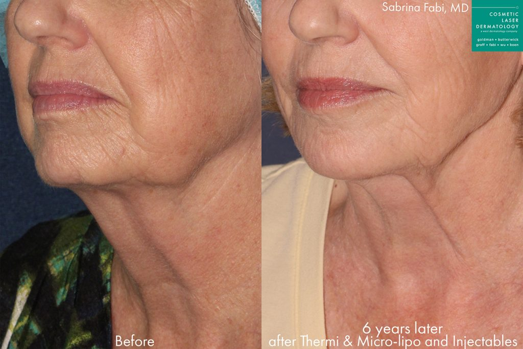 Actual unretouched patient before and after Ultherapy, injectables and micro-liposuction to contour the chin and firm the jawline by Dr. Fabi. Disclaimer: Results may vary from patient to patient. Results are not guaranteed.