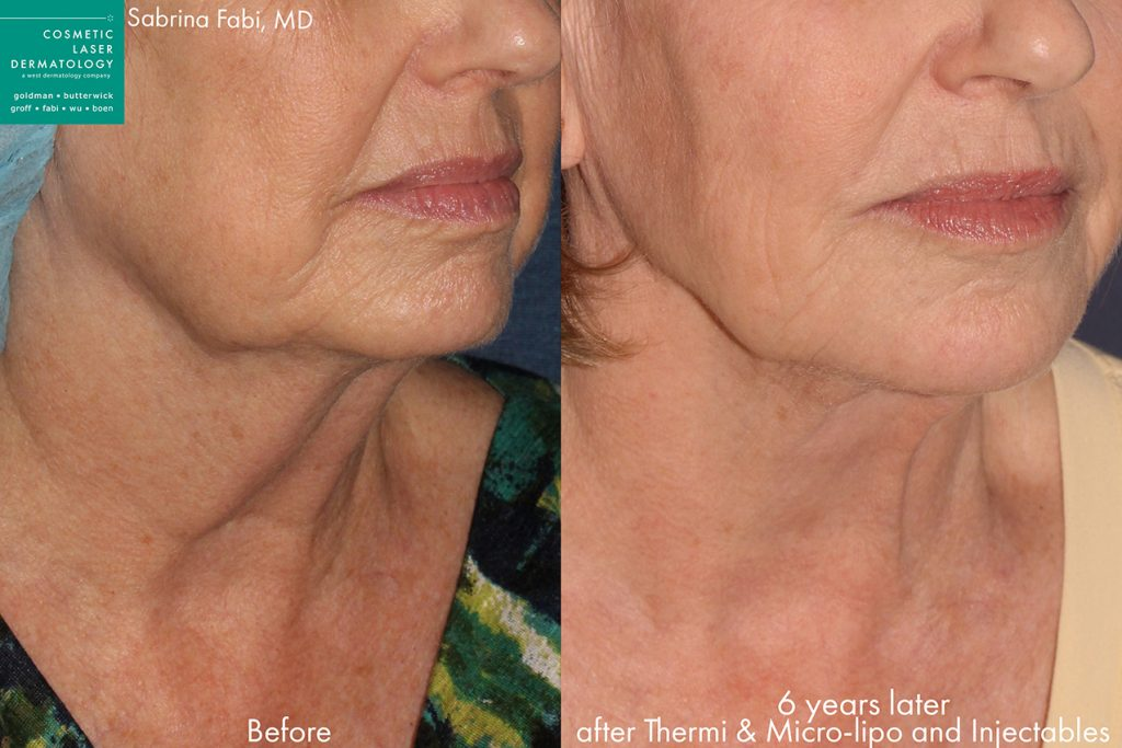 Actual unretouched patient before and after Ultherapy, micro-liposuction and injectables to firm the lower face and jawline by Dr. Fabi. Disclaimer: Results may vary from patient to patient. Results are not guaranteed.