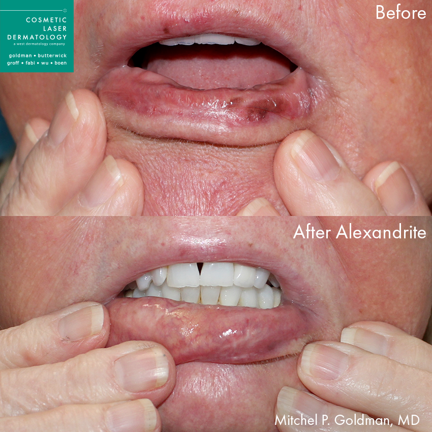 Actual un-retouched patient before and after Alexandrite laser to treat lip discoloration by Dr. Goldman. Disclaimer: Results may vary from patient to patient. Results are not guaranteed.