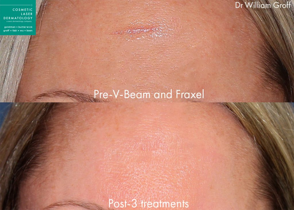 Vbeam and Fraxel lasers to address forehead scar by Dr. Groff. Disclaimer: Results may vary from patient to patient. Results are not guaranteed.