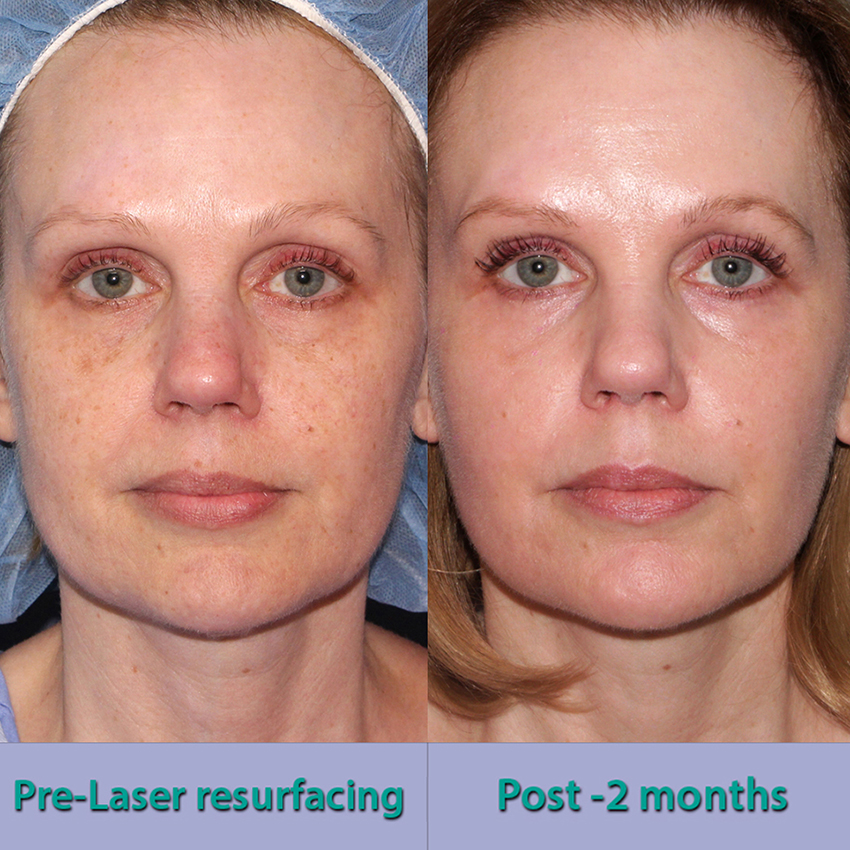 Actual un-retouched patient before and after laser resurfacing to treat sun damage by Dr. Groff. Disclaimer: Results may vary from patient to patient. Results are not guaranteed.