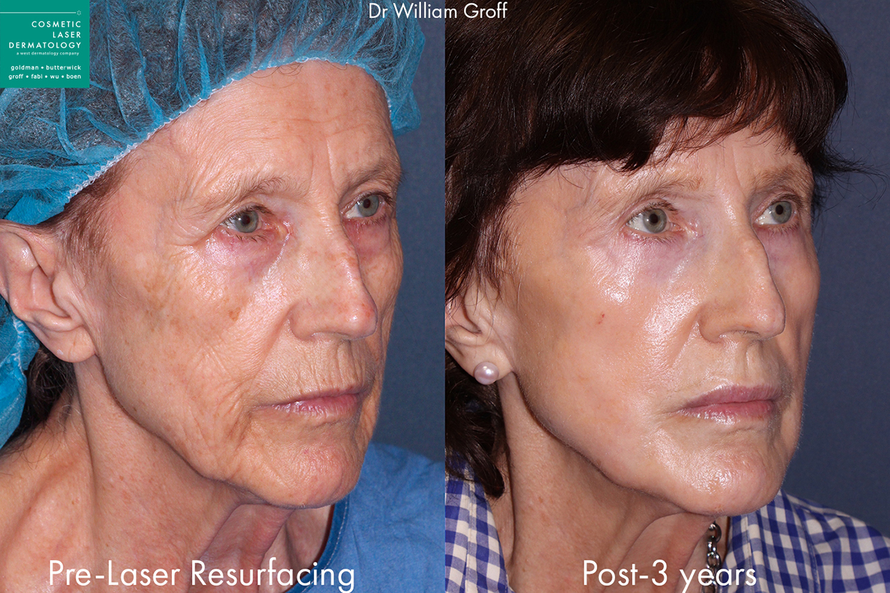 Actual un-retouched patient before and 3 years after laser resurfacing to rejuvenate the skin by Dr. Groff. Disclaimer: Results may vary from patient to patient. Results are not guaranteed.