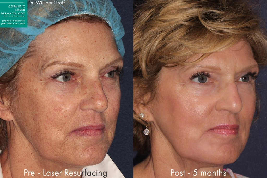 Actual unretouched patient before and 5 months after laser resurfacing for skin rejuvenation by Dr. Groff. Disclaimer: Results may vary from patient to patient. Results are not guaranteed.