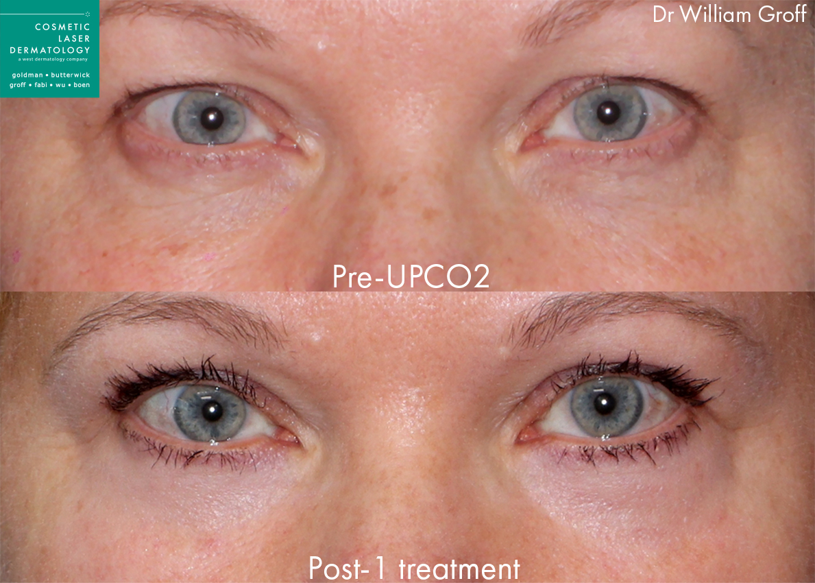UPCO2 laser resurfacing to rejuvenate the upper eyelids by Dr. Groff. Disclaimer: Results may vary from patient to patient. Results are not guaranteed.