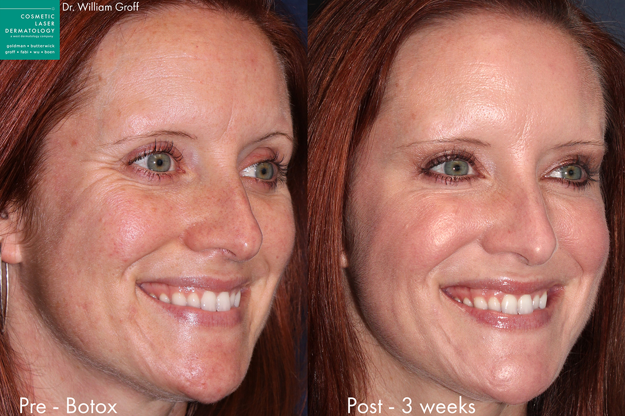 Actual un-retouched patient before and after Botox injections to treat crow's feet by Dr. Groff. Disclaimer: Results may vary from patient to patient. Results are not guaranteed.