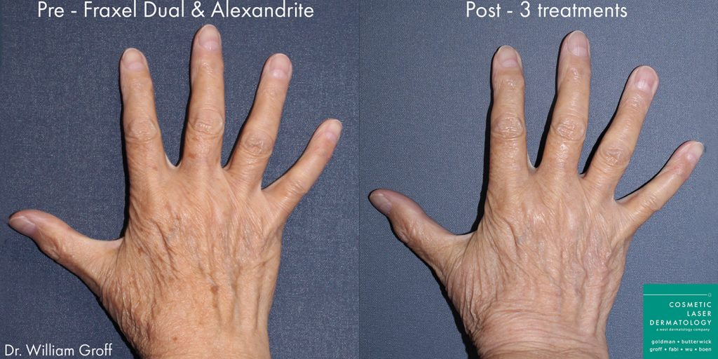 Unretouched photos of patient before and after Fraxel Dual and Alexandrite laser to rejuvenate the hands by Dr. Groff. Disclaimer: Results may vary from patient to patient. Results are not guaranteed.