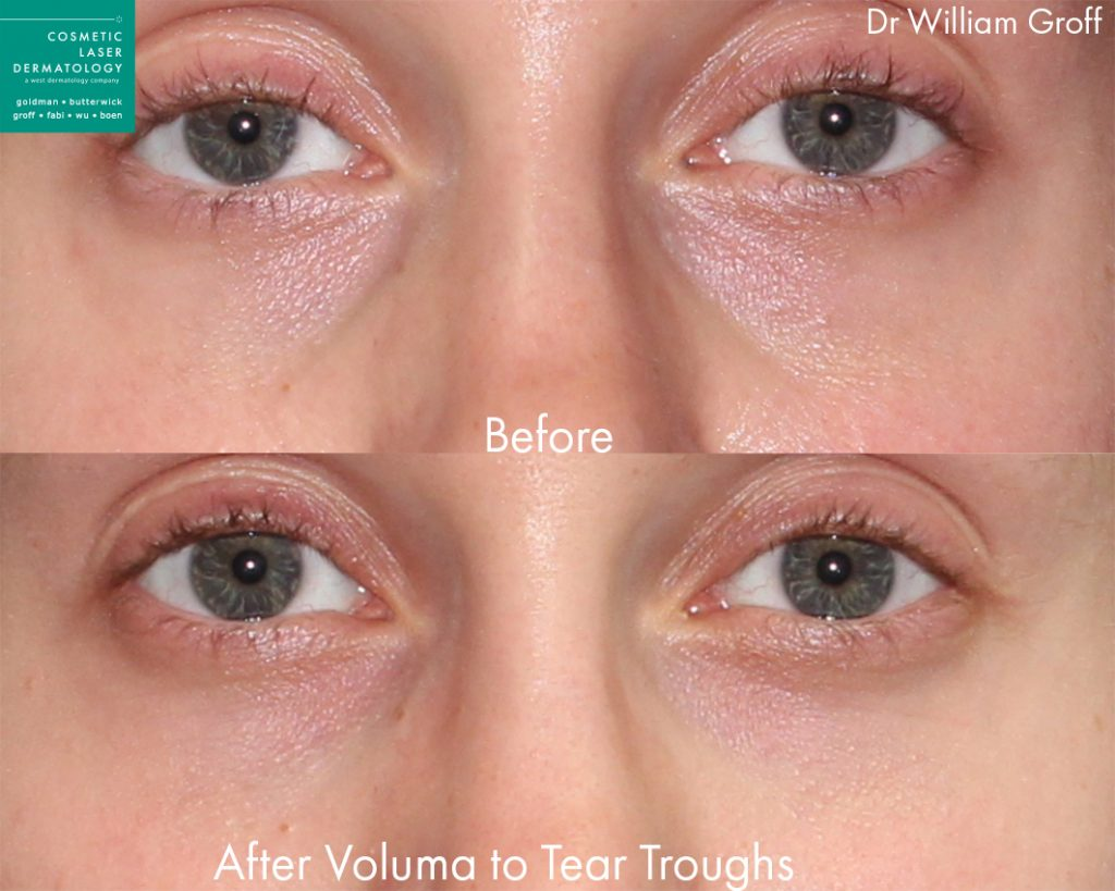 Voluma injections to the tear troughs / under eye circles to rejuvenate the eyes by Dr. Groff. Disclaimer: Results may vary from patient to patient. Results are not guaranteed.