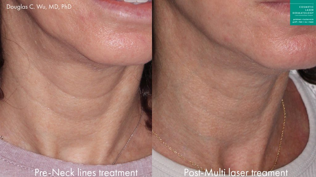 Actual un-retouched patient before and after laser resurfacing to rejuvenate the neck by Dr. Wu. Disclaimer: Results may vary from patient to patient. Results are not guaranteed.