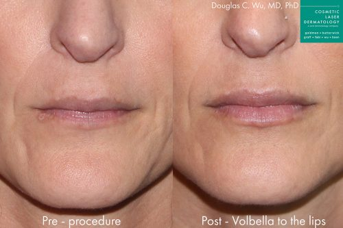 Before and after front image of Volbella treatment on a female's lips performed by Dr. Wu at our San Diego medical spa