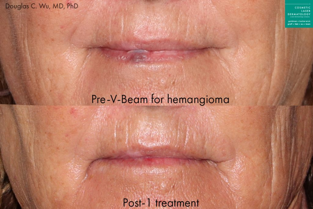 Actual un-retouched patient before and after Vbeam to treat hemangioma on the lip by Dr. Wu. Disclaimer: Results may vary from patient to patient. Results are not guaranteed.
