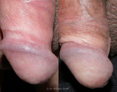 Penile papules treatment