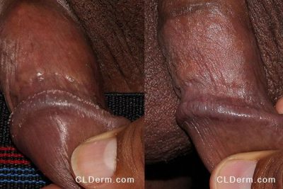 Actual unretouched patient before and after Lumenis UltraPulse Encore CO2 laser to treat pearly penile papules by Dr. Groff. Disclaimer: Results may vary from patient to patient. Results are not guaranteed.